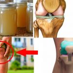 remedios para los dolores de huesos